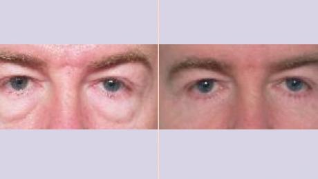 liposuctie gezicht ervaringen