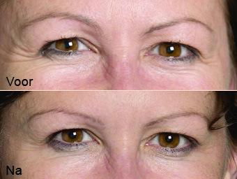 botoxbehandeling_01; Boven: Voor, Onder: Na