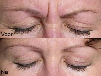 botoxbehandeling_02; Boven: Voor, Onder: Na