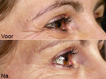botoxbehandeling_03; Boven: Voor, Onder: Na