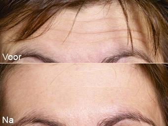 botoxbehandeling_04; Boven: Voor, Onder: Na