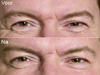 botoxbehandeling_05; Boven: Voor, Onder: Na