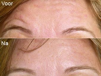 botoxbehandeling_06; Boven: Voor, Onder: Na
