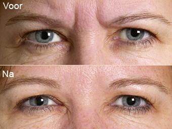 botoxbehandeling_07; Boven: Voor, Onder: Na