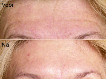 botoxbehandeling_08; Boven: Voor, Onder: Na