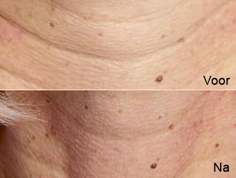 botoxbehandeling_09; Boven: Voor, Onder: Na