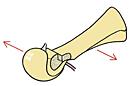 Chevron osteotomie: opschuiven en vastzetten van het kopje van het middenvoetsbeentje.