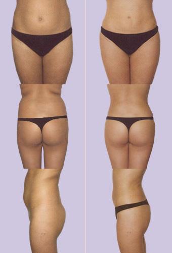 sporten na liposuctie