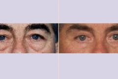 ooglidcorrectie_04