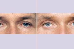ooglidcorrectie_06
