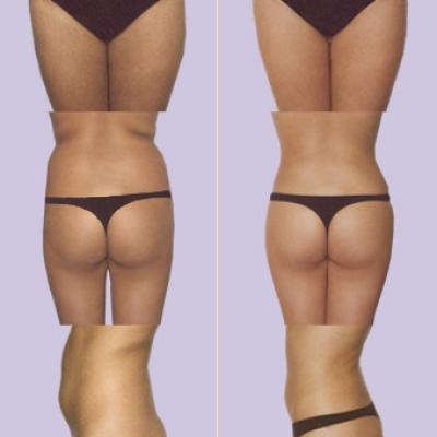 liposuctie buik amsterdam