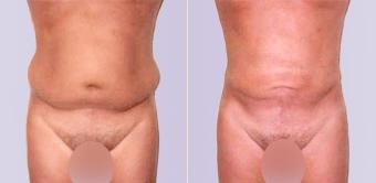 liposuctie heupen buik