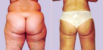 liposuctie lovehandles voor en na