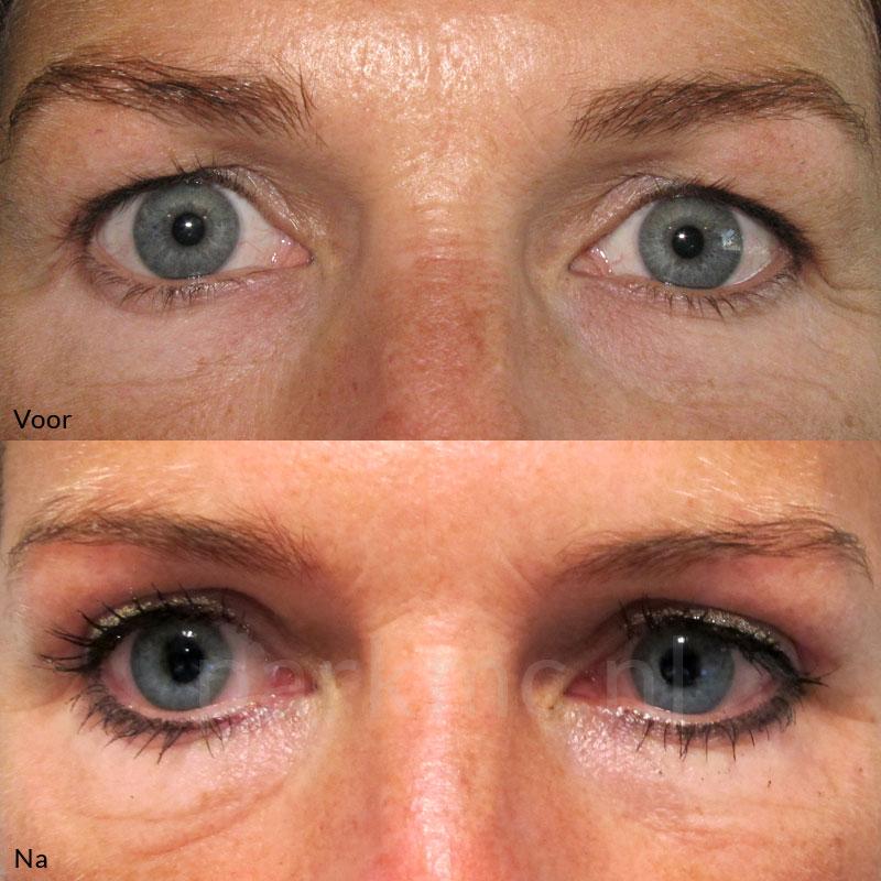 wanneer ooglidcorrectie